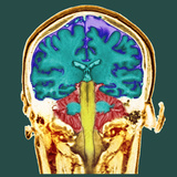 Healthy Brain, MRI Scan Photographic Print by Science Photo Library