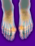 Bunions, X-ray Photographic Print by Science Photo Library