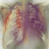 Rib Fracture, X-ray Photographic Print by  PHT