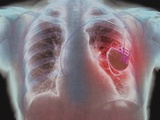 Heart Pacemaker, X-ray Photographic Print by  PHT