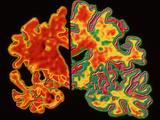 Alzheimer's Brain Photographic Print by  PASIEKA