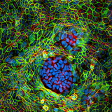 Cancer Cells, Light Micrograph Photographic Print by Science Photo Library
