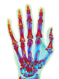Fractured Palm Bones of Hand, X-ray Photographic Print by Science Photo Library