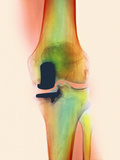 Knee Joint Prosthesis, X-ray Photographic Print by Science Photo Library
