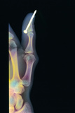 Nail In Thumb X-ray Photographic Print by Science Photo Library