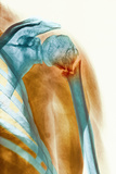 Broken Upper Arm Bone, X-ray Photographic Print by Science Photo Library