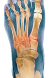 Crushed Broken Foot, X-ray Photographic Print by Science Photo Library