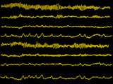 Normal EEG Read Out of the Brains Alpha Waves Photographic Print by Science Photo Library