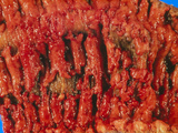 Excised Human Colon Showing Ulcerative Colitis Photographic Print by Dr. E. Walker