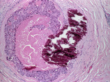 Light Micrograph of Intraductal Breast Carcinoma Photographic Print by Dr. E. Walker