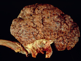 Gross Specimen of Kidney Scarred by Hypertension Photographic Print by Dr. E. Walker