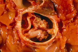 Gross Specimen of a Sub-aortic Stenosis In Heart Posters by Dr. E. Walker