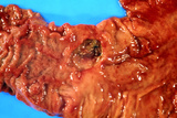Close-up Showing a Duodenal Ulcer Photo by Dr. E. Walker