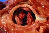 Artificial Heart Valve Showing Bacterial Infection Poster by Dr. E. Walker