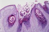 Molluscum Contagiosum Prints by Dr. E. Walker
