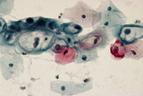 LM of Cervical Smear Revealing HPV Infection Photographic Print by Dr. E. Walker