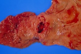Bleeding Gastric Ulcer In Excised Part of Stomach Prints by Dr. E. Walker