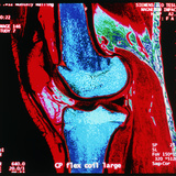 Coloured MRI Scan of Human Knee Joint, Side View Premium Photographic Print by Geoff Tompkinson