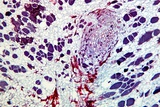 Clubroot Infection, Light Micrograph Photo by Dr. Keith Wheeler