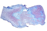 Black Scab Infection, Light Micrograph Reprodukcja zdjęcia autor Dr. Keith Wheeler