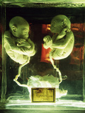 Foetal Gibon Twins Photographic Print by Dirk Wiersma
