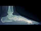 Flat Foot, X-ray Photographic Print by  ZEPHYR