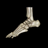 Normal Foot, 3D CT Scan Photographic Print by  ZEPHYR