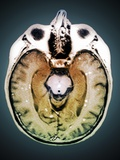 Secondary Brain Cancer, MRI Scan Photographic Print by  ZEPHYR