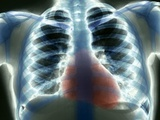 Healthy Heart And Lungs, X-ray Photo by  ZEPHYR