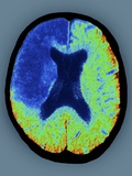 Cerebral Stroke, CT Scan Print by  ZEPHYR