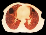Lung Abscess, CT Scan Print by  ZEPHYR