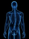 Scoliosis of the Spine, Artwork Photographic Print by  SCIEPRO