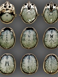 Normal Brain, MRI Scans Photographic Print by  ZEPHYR
