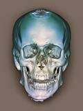 Normal Skull, 3D CT Scan Photographic Print by  ZEPHYR