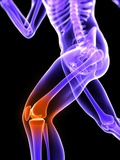 Knee Pain, Conceptual Artwork Photographic Print by  SCIEPRO