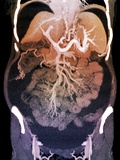 Chronic Liver Disease, CT Scan Photographic Print by  ZEPHYR