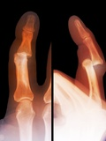 Dislocated Finger Joint, X-ray Photographic Print by  ZEPHYR