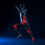 Running Injuries, Conceptual Artwork Photographic Print by  SCIEPRO
