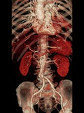 Aortic Aneurysm CT Scan Photographic Print by  ZEPHYR