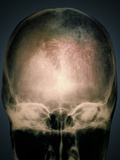 Osteoporosis In the Skull, X-ray Photographic Print by  ZEPHYR
