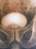 Prostate Disorder, X-ray Urogram Photo by  ZEPHYR