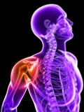 Shoulder Pain, Conceptual Artwork Photographic Print by  SCIEPRO