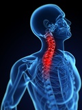 Neck Pain, Conceptual Artwork Premium Photographic Print by  SCIEPRO