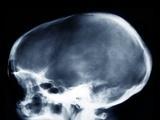 Dolichocephalic Skull Deformity, X-ray Photographic Print by  ZEPHYR