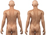 Scoliosis of the Spine, Artwork Premium Photographic Print by  SCIEPRO