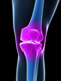 Knee Pain, Conceptual Artwork Premium Photographic Print by  SCIEPRO