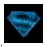Superman: Superman Emblem Styled as an X-Ray, with Vertebrae and Other Bones Art