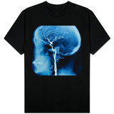 X-Ray of Human Head T-Shirts
