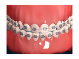 Medical Illustration of Human Mouth Showing Teeth, Gums and Metal Braces Posters