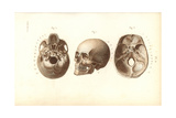 Views of the Skull Giclee Print